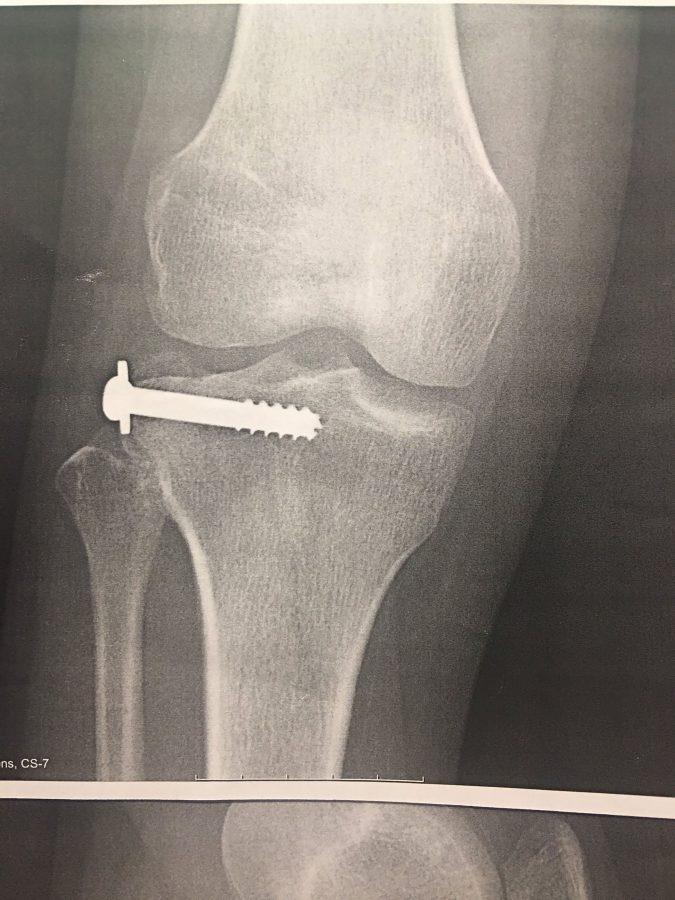 Senior Crystal Velazquez's x-ray, post-surgery.